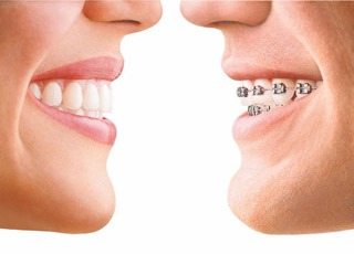 Allineatore Invisibile (Invisalign)